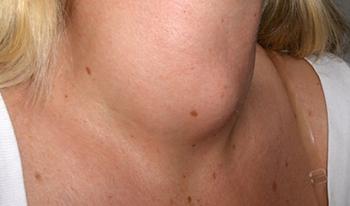 El bocio es una manifestación de enfermedadtiroidea, generalmente es benigno y tratable.
